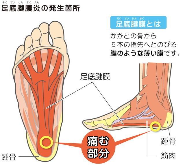 「足底筋」の画像検索結果